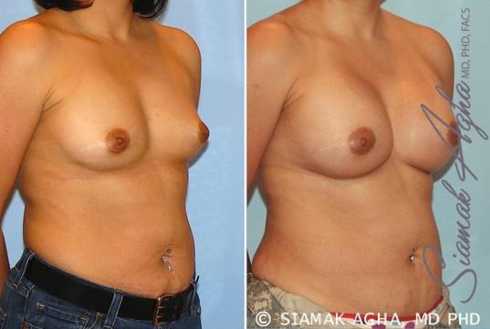 orange-county-breast-augmentation-patient-20-front-right