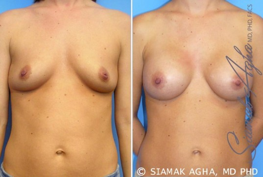 orange-county-breast-augmentation-patient-21-front