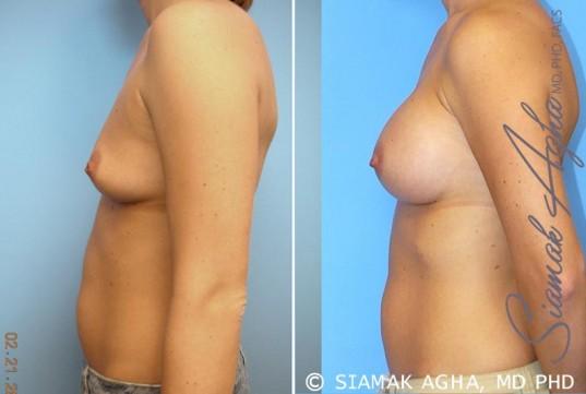 orange-county-breast-augmentation-patient-21-left