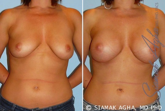 orange-county-breast-augmentation-patient-22-front