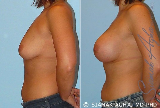 orange-county-breast-augmentation-patient-22-left