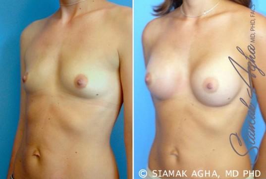 orange-county-breast-augmentation-patient-23-front-left