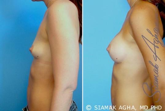 orange-county-breast-augmentation-patient-23-left