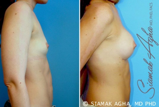orange-county-breast-augmentation-patient-23-right