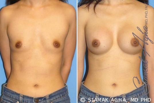 orange-county-breast-augmentation-patient-24-front