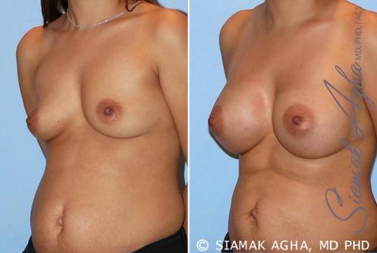 orange-county-breast-augmentation-patient-26-front-left