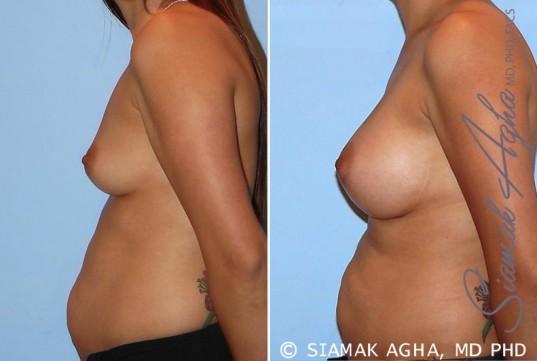 orange-county-breast-augmentation-patient-26-left