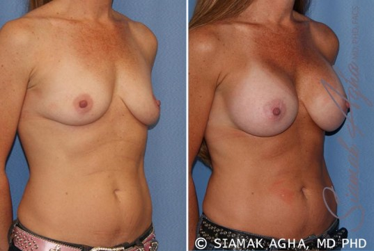 orange-county-breast-augmentation-patient-27-front-right