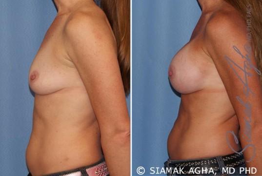 orange-county-breast-augmentation-patient-27-left