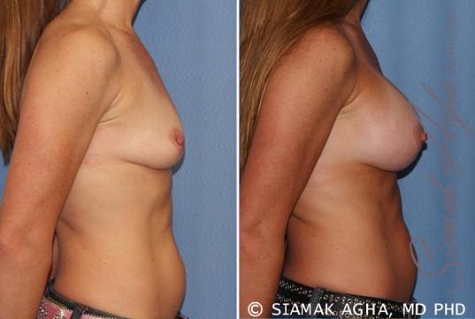 orange-county-breast-augmentation-patient-27-right