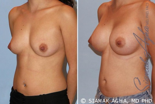 orange-county-breast-augmentation-patient-29-front-left