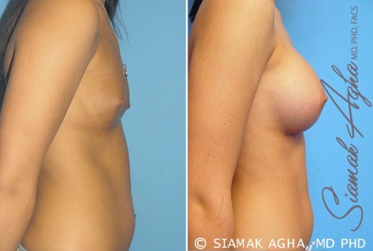 orange-county-breast-augmentation-patient-3-right