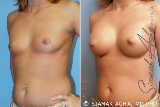 orange-county-breast-augmentation-patient-31-front-left