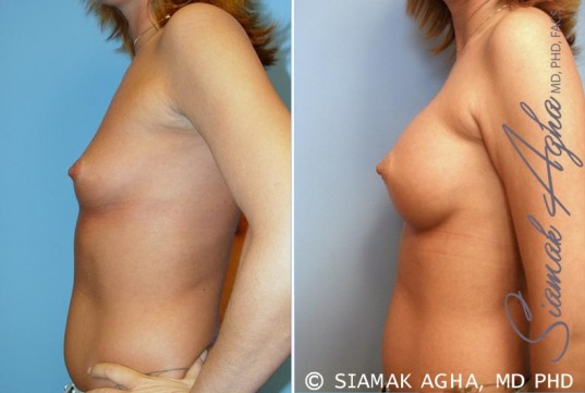 orange-county-breast-augmentation-patient-31-left
