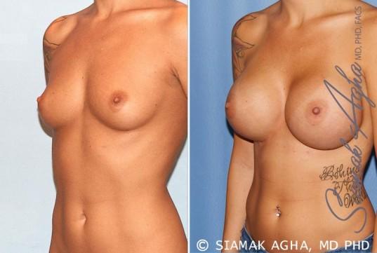 orange-county-breast-augmentation-patient-33-front-left