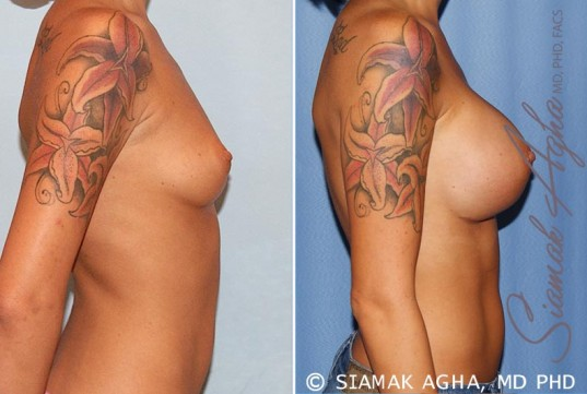 orange-county-breast-augmentation-patient-33-right