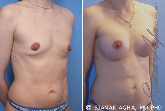 orange-county-breast-augmentation-patient-34-front-right