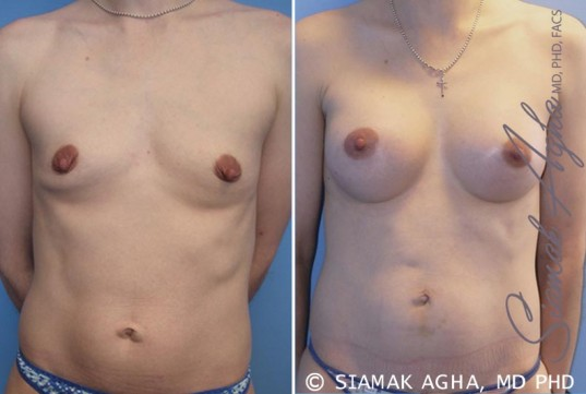 orange-county-breast-augmentation-patient-34-front