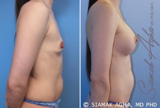 orange-county-breast-augmentation-patient-34-right