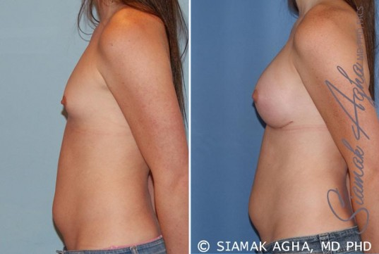 orange-county-breast-augmentation-patient-35-left