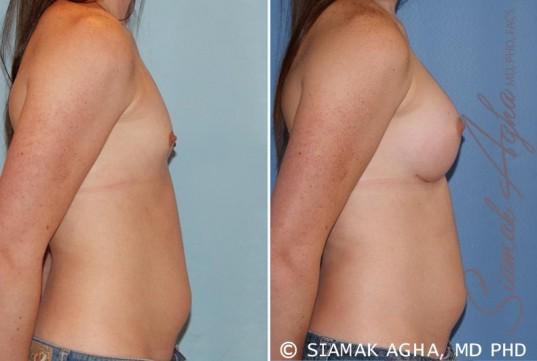 orange-county-breast-augmentation-patient-35-right