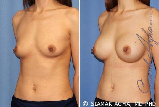 orange-county-breast-augmentation-patient-36-front-left