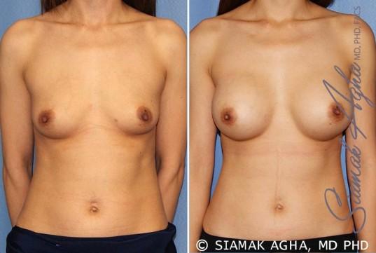 orange-county-breast-augmentation-patient-36-front