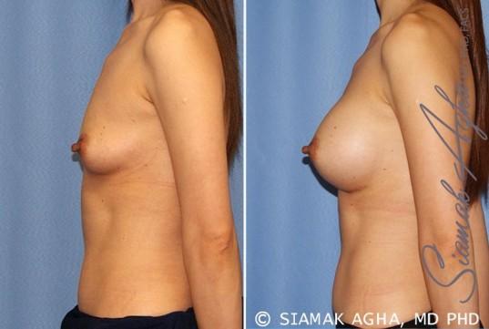 orange-county-breast-augmentation-patient-36-left