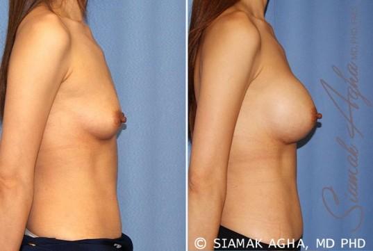 orange-county-breast-augmentation-patient-36-right