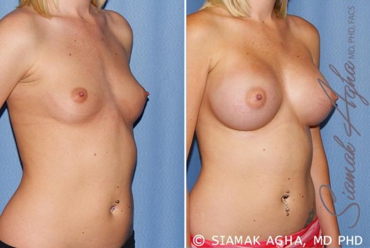 orange-county-breast-augmentation-patient-37-front-right