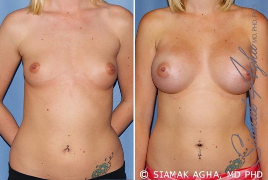 orange-county-breast-augmentation-patient-37-front