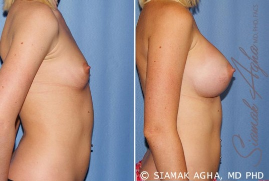 orange-county-breast-augmentation-patient-37-right