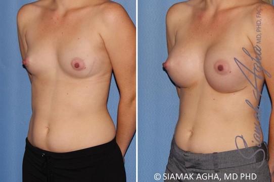 orange-county-breast-augmentation-patient-38-front-left