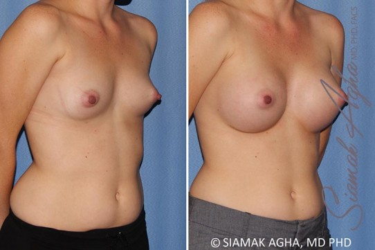 orange-county-breast-augmentation-patient-38-front-right