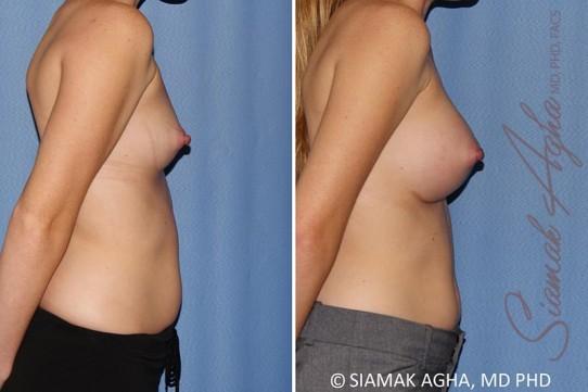 orange-county-breast-augmentation-patient-38-right
