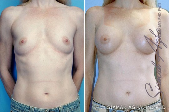 orange-county-breast-augmentation-patient-4-front