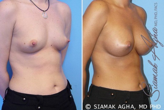 orange-county-breast-augmentation-patient-5-front-right