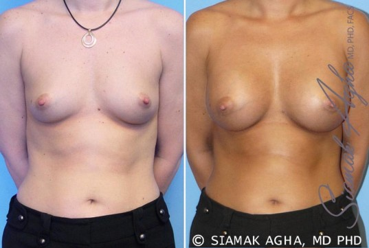orange-county-breast-augmentation-patient-5-front