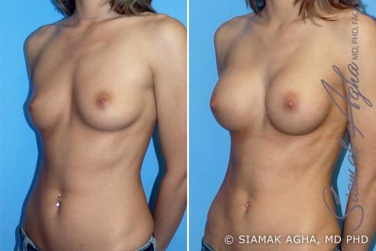 orange-county-breast-augmentation-patient-6-front-left