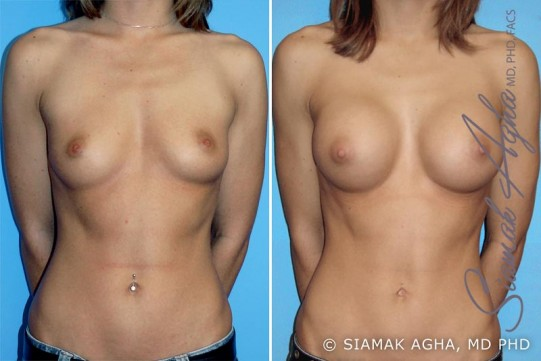 orange-county-breast-augmentation-patient-6-front