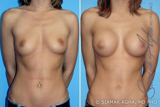 orange-county-breast-augmentation-patient-6-front