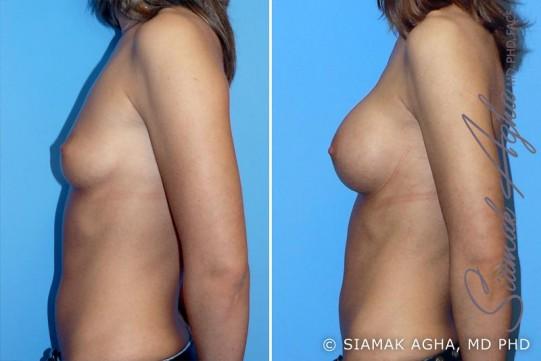 orange-county-breast-augmentation-patient-6-left