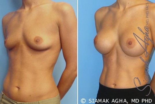 orange-county-breast-augmentation-patient-7-front-left