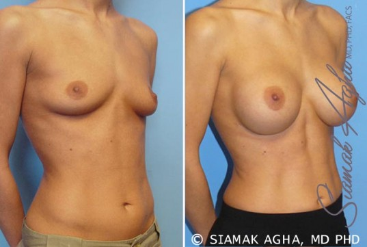 orange-county-breast-augmentation-patient-7-front-right