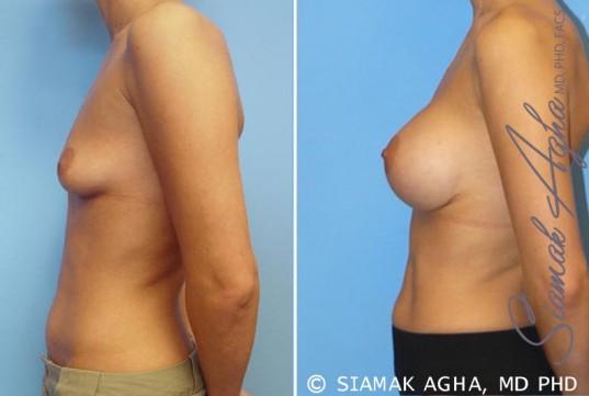 orange-county-breast-augmentation-patient-7-left