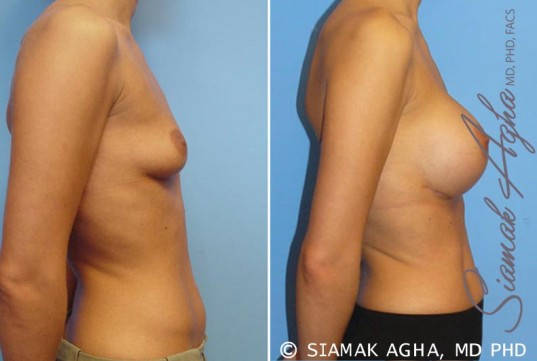 orange-county-breast-augmentation-patient-7-right