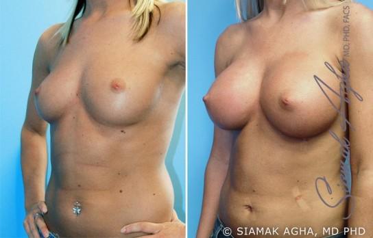 orange-county-breast-augmentation-patient-8-front-left