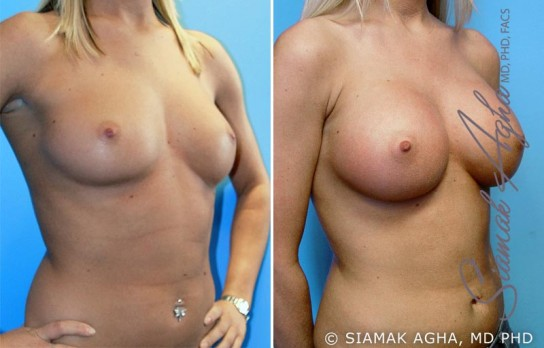 orange-county-breast-augmentation-patient-8-front-right