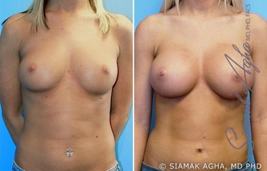 orange-county-breast-augmentation-patient-8-front