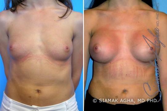 orange-county-breast-augmentation-patient-9-front